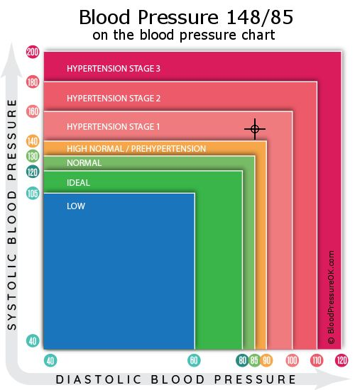 Blood Pressure 148 over 85 on the blood pressure chart