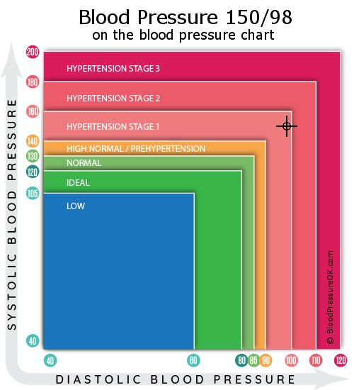 Blood Pressure 150 over 98 on the blood pressure chart